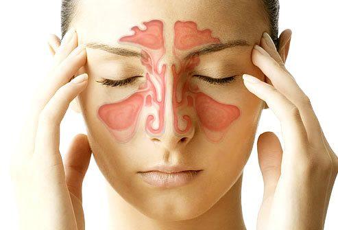 mujer con sintomas de sinusitis - Entérate qué es la sinusitis