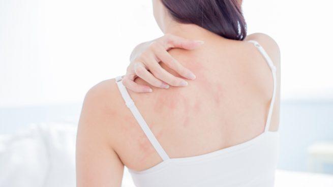 Alergias en la piel de la espalda