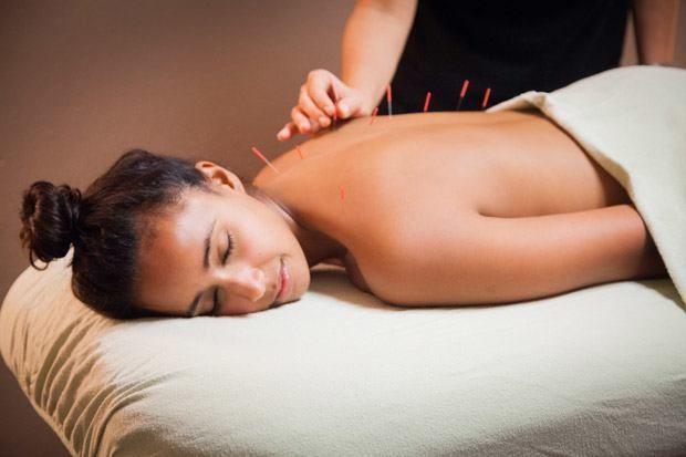 chica con acupuntura en la espalda - Descubre qué es la acupuntura