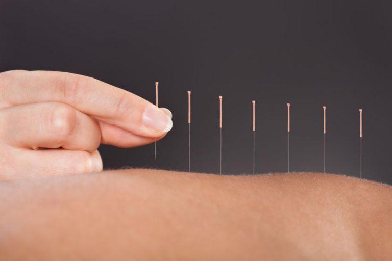 Descubre qué es la acupuntura