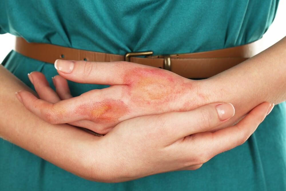 chica con quemadura en mano - Consejos en primeros auxilios