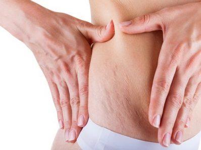 Mujer con estrías en el vientre