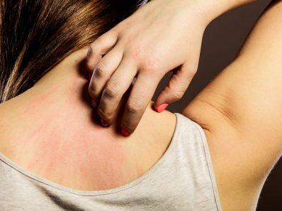 Chica con piel atópica rascándose el cuello
