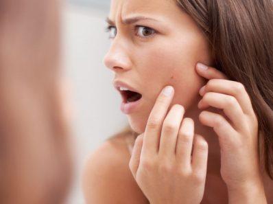 Chica con acné en su mejilla