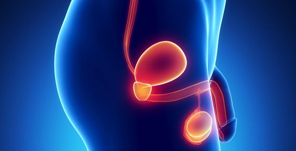 conoce mas del cancer de prostata - Mitos sobre el cáncer de próstata