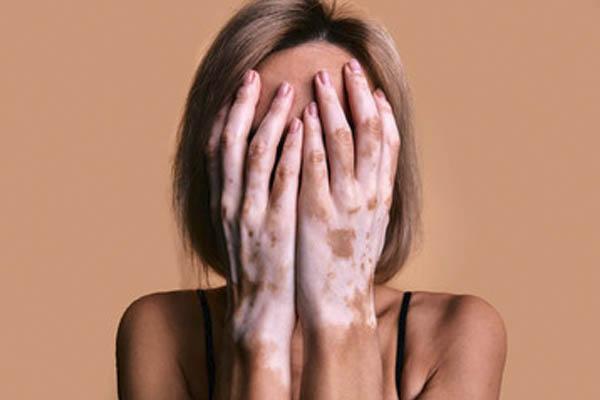 enterate que es el vitiligo - ¿Qué es el vitíligo?