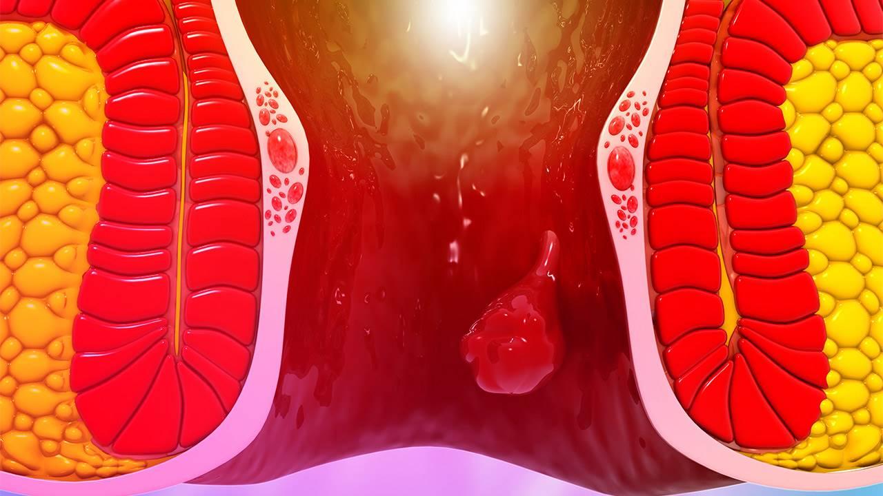 que sabes de las hemorroides - ¿Qué son las hemorroides?